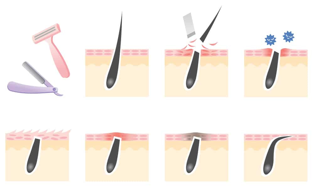 how ingrown hair happens